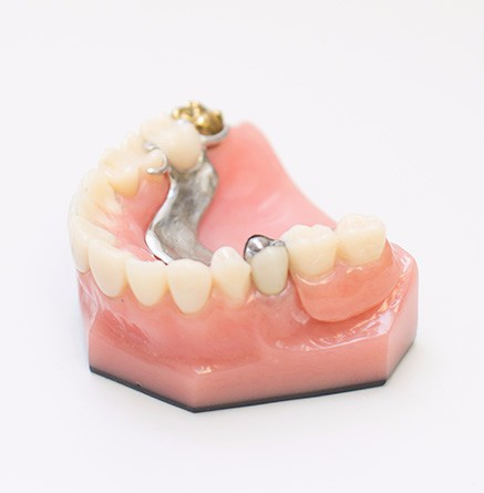 Dentures, Winnipeg Dentist